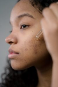 Argan Oil for Acne Treatment: Good or Bad?